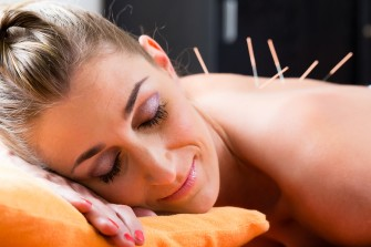 Woman at acupuncture session with needles in back having alterna