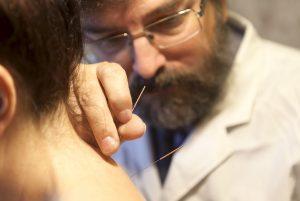 Practitioner practising acupuncture treatment